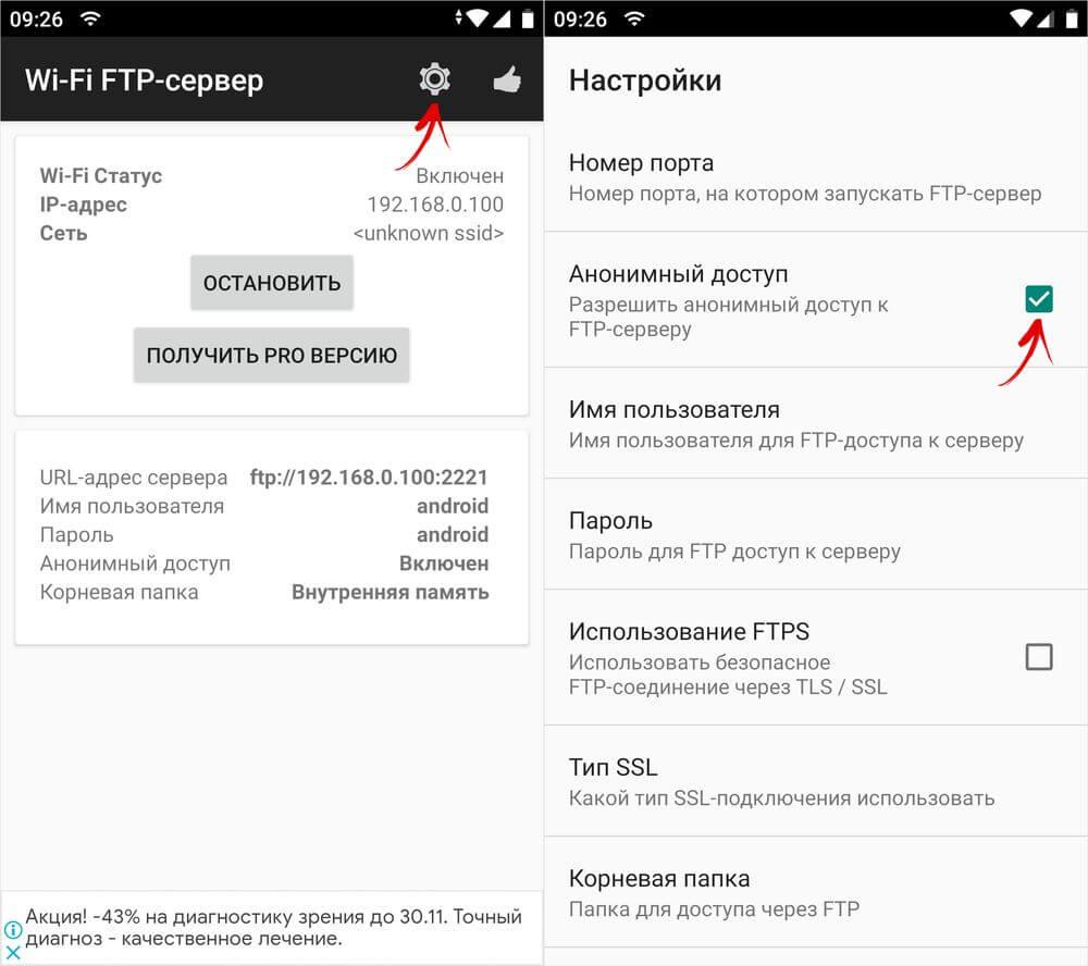 функция анонимный доступ в настройках wi-fi ftp-сервера